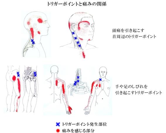 代々木の接骨院で痛みの引き金点・トリガーポイントの治療