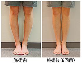 東京都渋谷区代々木の接骨院でO脚矯正・足の歪みの改善