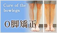 O脚矯正、足の歪みの原因と改善矯正治療の症例