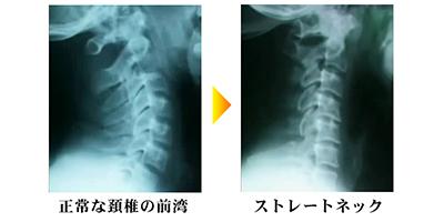 渋谷区代々木の接骨院でストレートネックや首の痛みの原因と改善