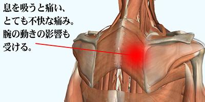 新宿の葵カイロで背中や肩甲骨の痛みの治療