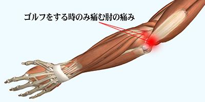 渋谷区代々木でゴルフ肘の治療改善